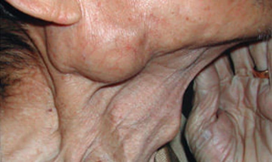 Parotid Lump Surgery Treatment in Singapore